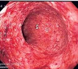morbo di Crohn: colonscopia