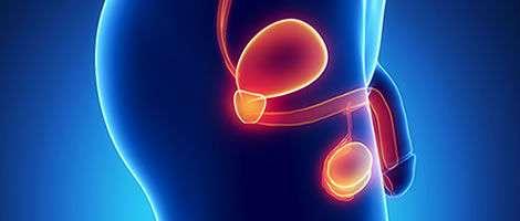 Epididimite: una fastidiosa infiammazione dell'epididimo