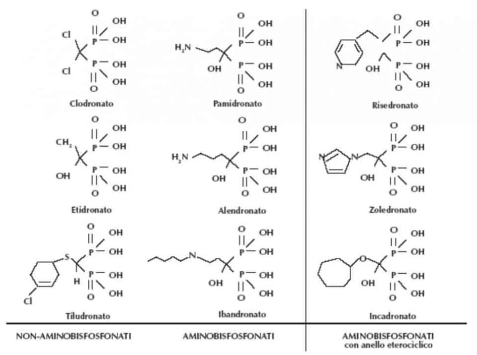 Osteonecrosi: formule dei bifosfonati