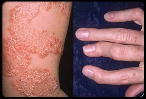 Artrite psoriasica o artropatia psoriasica