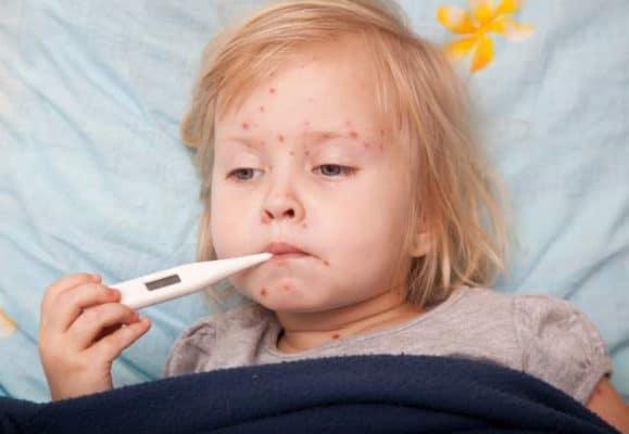 Incubazione, contagiosità e profilassi delle malattie infettive