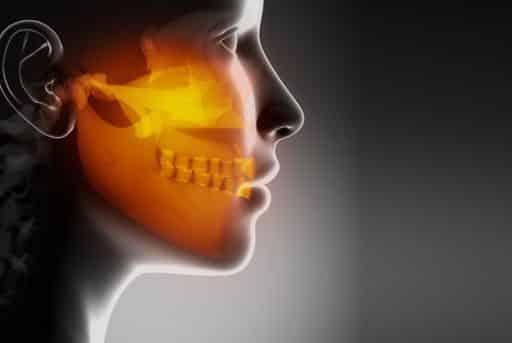 Osteonecrosi da bifosfonati