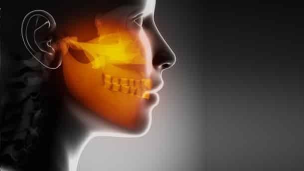Osteonecrosi dei mascellari da Bifosfonati