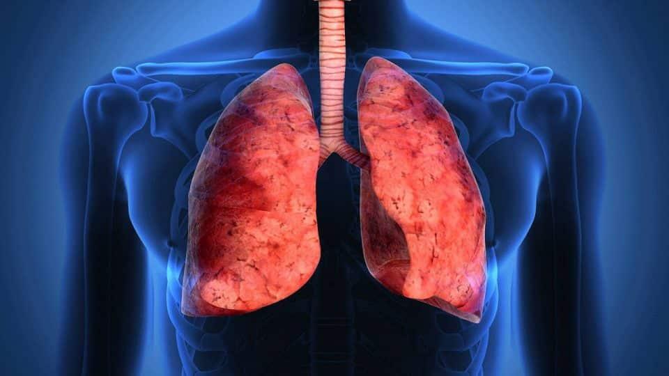 Polmoniti interstiziali o malattie interstiziali polmonari
