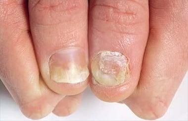 psoriasi: onicodistrofia