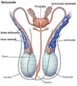 Varicocele: anatomia