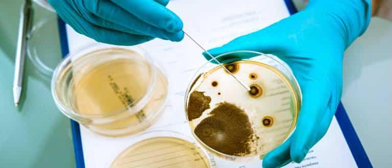 Listeriosi: coltura su agar