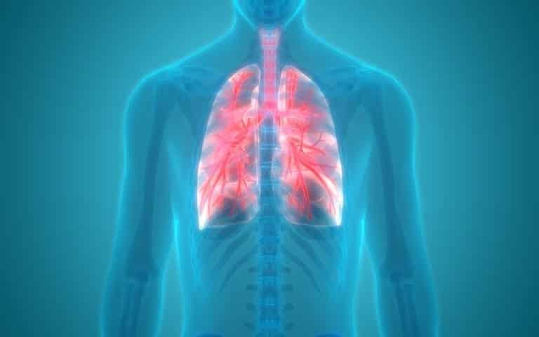 Legionellosi: malattia dei legionari