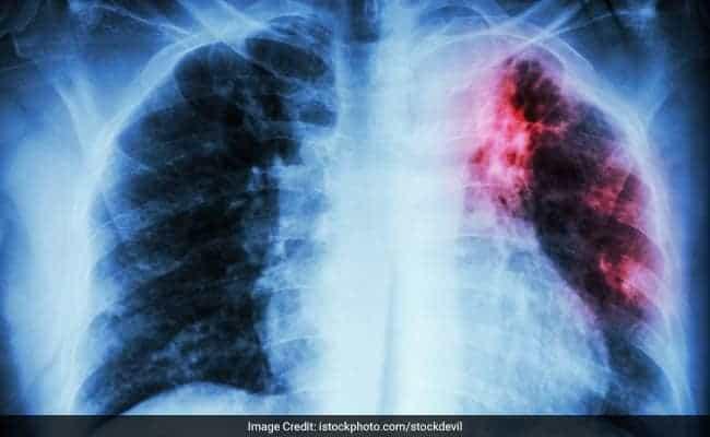 Tubercolosi polmonare: aspetto radiologico