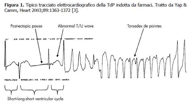 Azitromicina e rischio cardiovascolare: torsione di punta